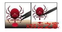 被蜱叮咬要小心,可能会感染莱姆病!